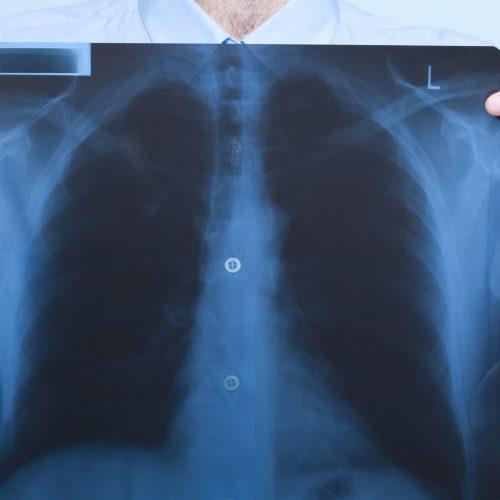 Centro di Ricerca e di Diagnosi e Cura delle Malattie Respiratorie