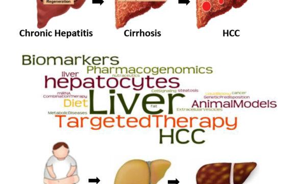 Nuove strategie terapeutiche e nuovi marcatori molecolari per la diagnosi e il monitoraggio della risposta terapeutica nel carcinoma epatocellulare
